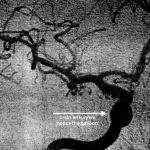 Random image: brain-aneurysm