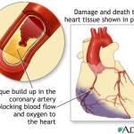 Random image: heart-damage