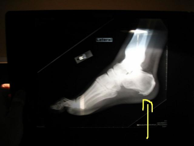 how-to-treat-ankle-bone-spur-photo