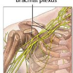Random image: injury-to-brachial-plexus-photo
