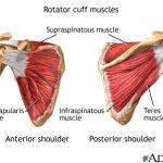 Random image: torn-rotator-cuff