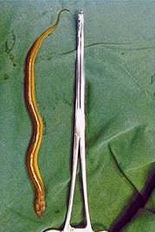 Eel found in man's penis