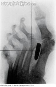 bizarre x ray