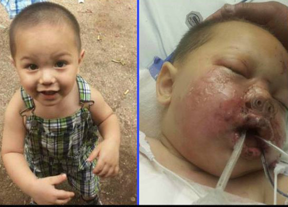 Playpen One Month Old Baby Baby Critically Burned During Swat Raid Stun Grenade