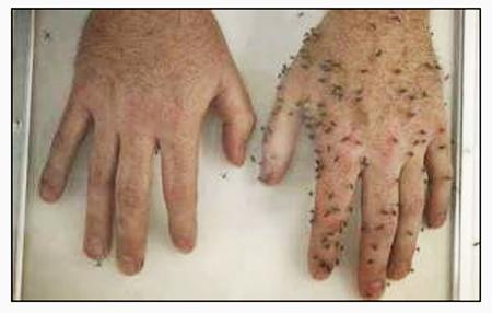 Bug hands