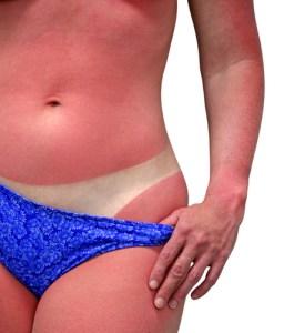 sunburned body