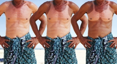 funny man with sunburn in summer beach