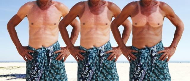 funny man with sunburn in summer beach