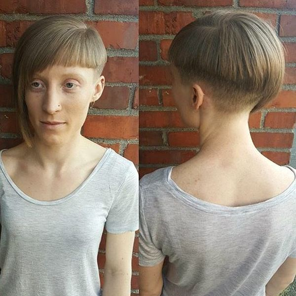 Asymmetry from Fringe to Nape0