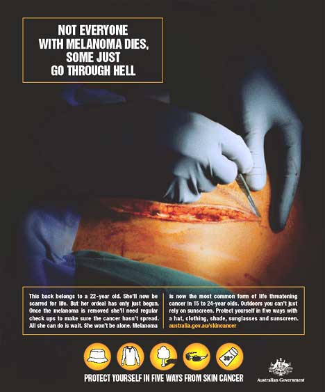 Effects of melanoma - poster in Australian skin cancer awareness campaign