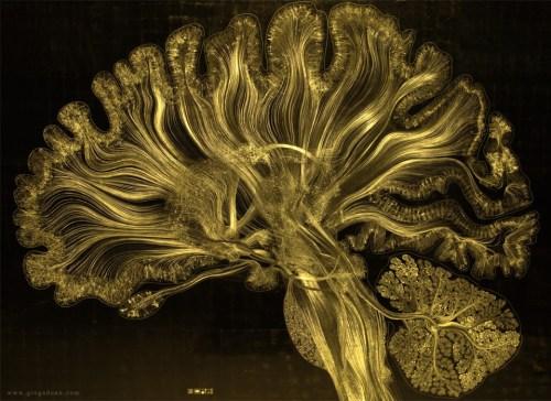 gold-brain