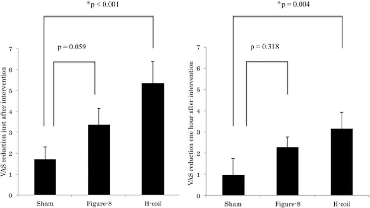 Efficacy of deep rTMS for neuropathic pain in the lower limb a