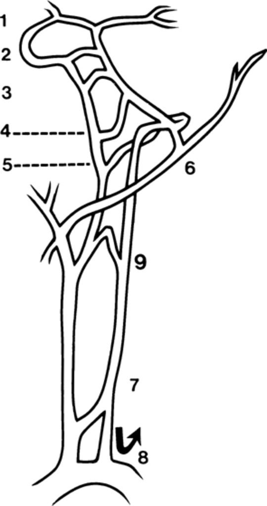 Congenital anastomosis between the vertebral artery and internal