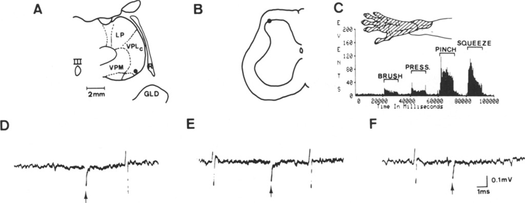 Inhibition of primate spinothalamic tract cells by TENS in Journal