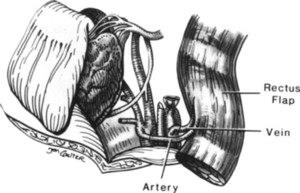 petrous apex diagram