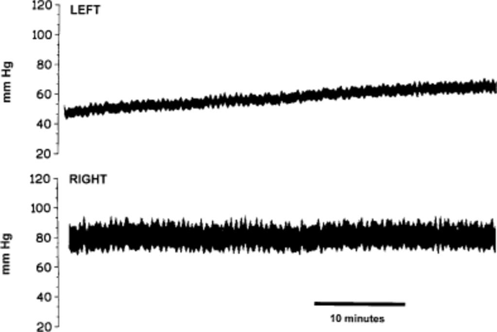 Interhemispheric supratentorial intracranial pressure gradients in