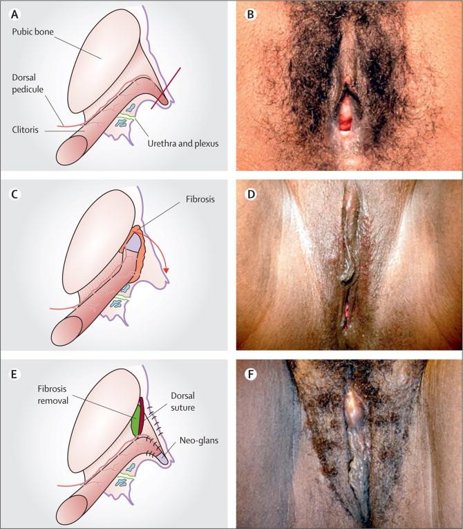 eritrean women female genital mutilation