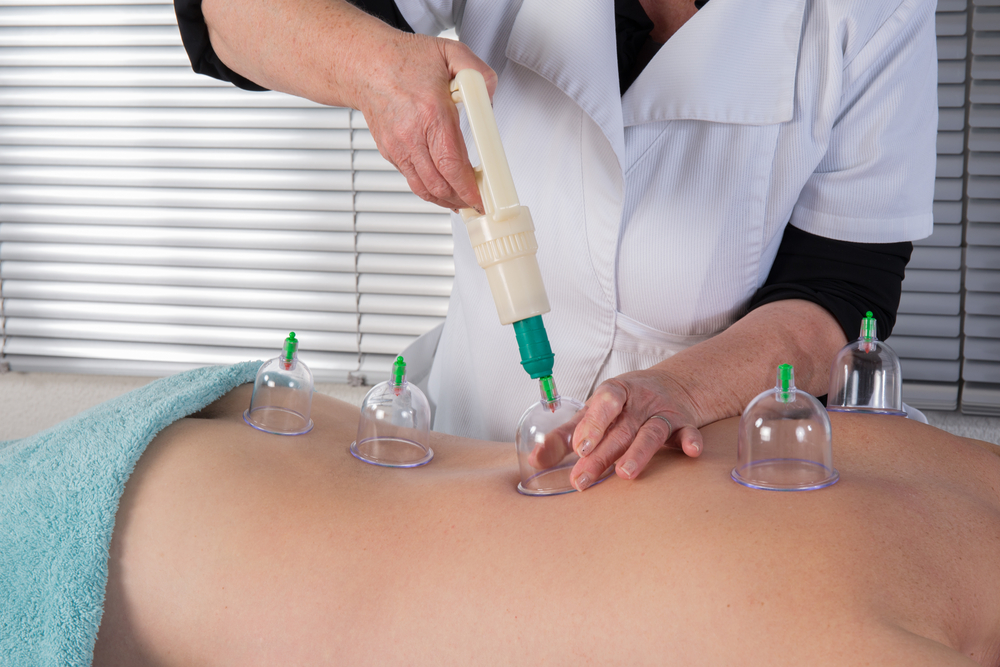 Professional performing Hijama (cupping)