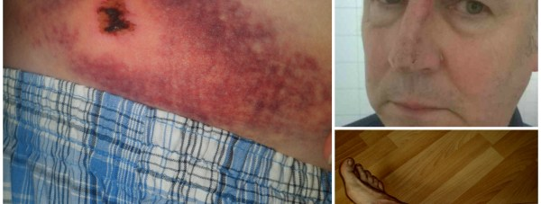 John sustained extensive bruising and cuts when he was thrown from his seat on the bus.