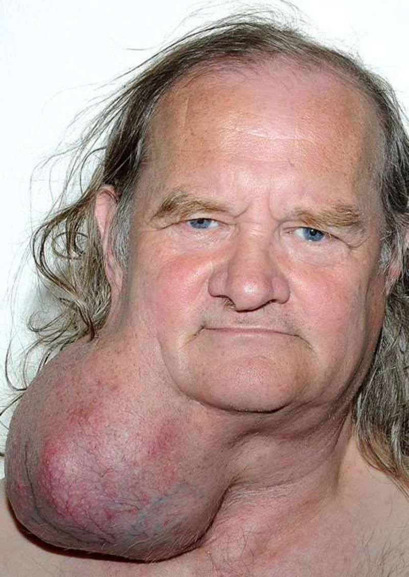 Ian Crow lived with the benign tumour for 24 years