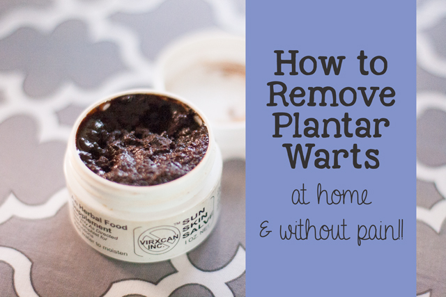 How to Remove a Plantar Wart ~ Home Remedy