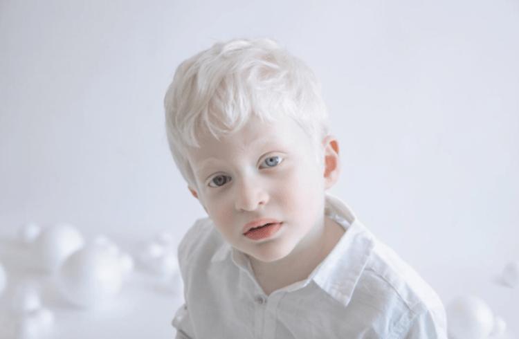 Boys Car Wallpaper Photographer Captures Stunning Portraits Of Albino People