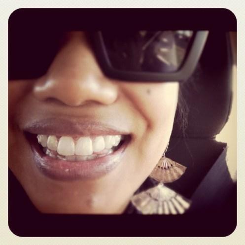 InvisAlign Smile