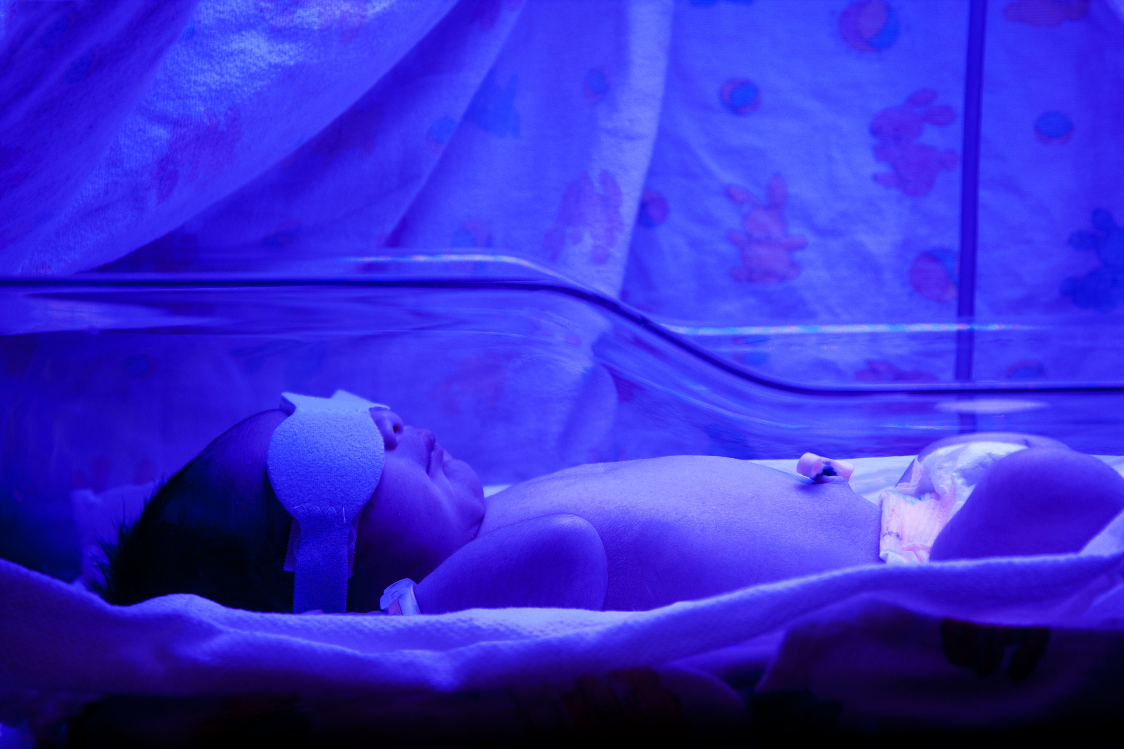 Newborn Babies Jaundice Treatment Newborns Can Suffer Learning Difficulties Adhd And Even Die