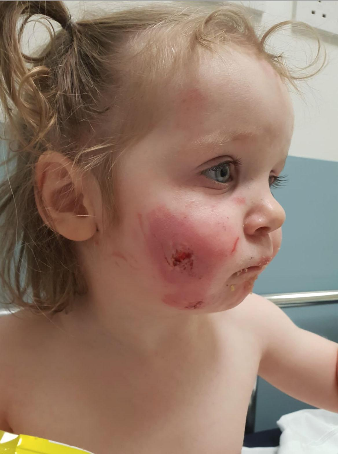 Toddler Fake Babies Toddler Is Scarred For Life After Children Bite Her 15 Times