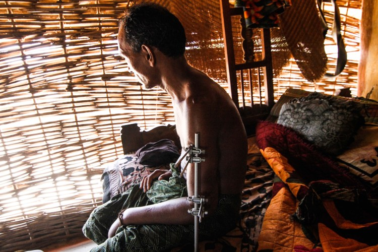 Irma in his home, his left arm fixed with external fixation rods. Credit: Javed Iqbal