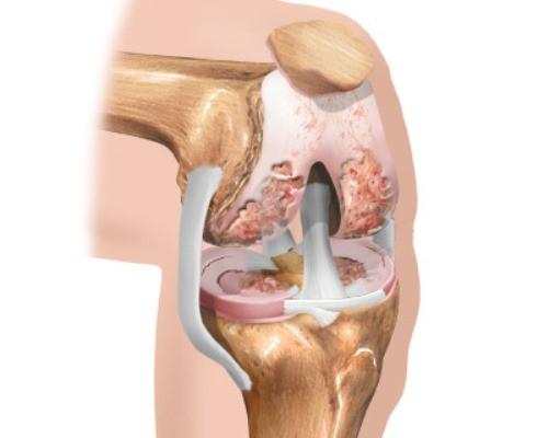 лечение артритов и артрозов коленных суставов