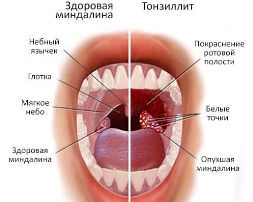 Тонзиллит и оральный секс