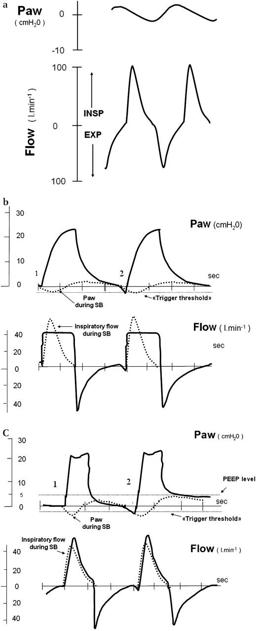 Ventilator modes and settings during non-invasive ventilation