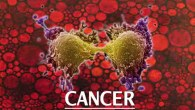 Cancer has been crippling us, killing us, causing pain since decades. New Study done on mice suggests that the way forward to cope with cancer is to kill it in […]