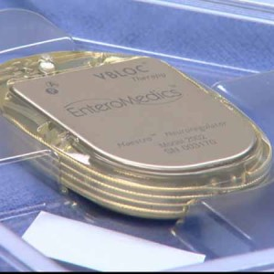 Hunger Pacemaker Might Be A Solution To Weight Loss