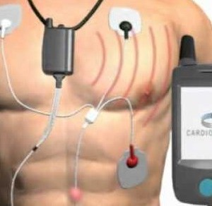 Mobile Cardiac Telemetry Systems Market: Global Industry Size, Share, Growth, Trends, Analysis and Forecast 2019 to 2027