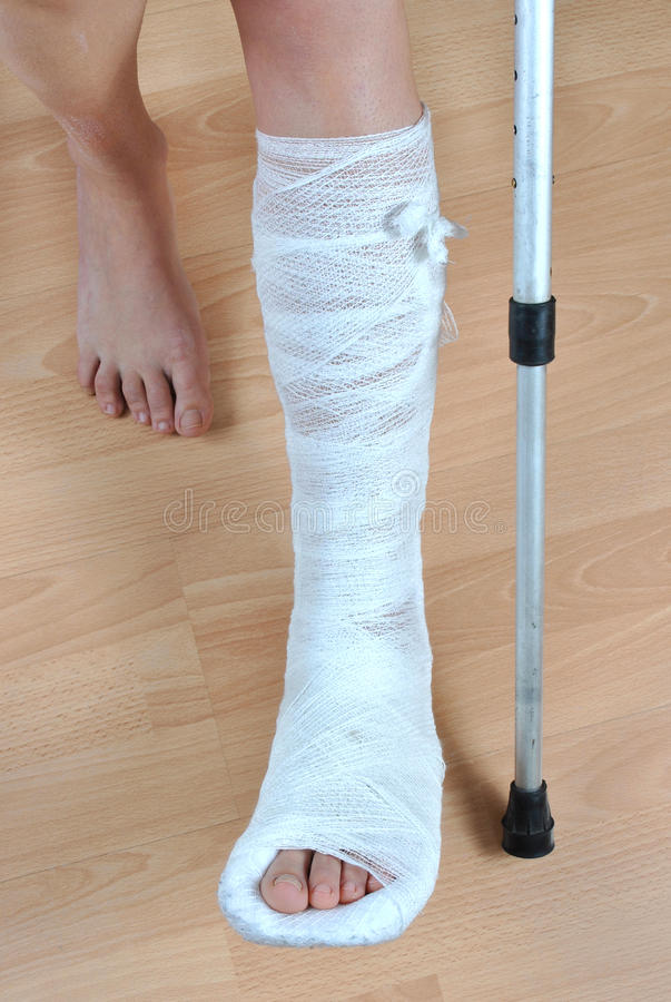 Duschen Nach Bein Op Broken Leg Stock Photo. Image Of Physical, Leave, Fracture