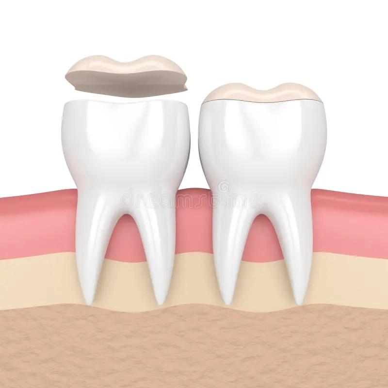 3d Render Of Teeth With Dental Onlay Stock Illustration
