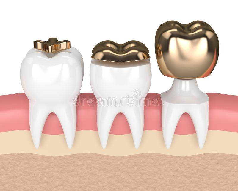 3d Render Of Teeth With Different Types Of Dental Gold Filling Stock
