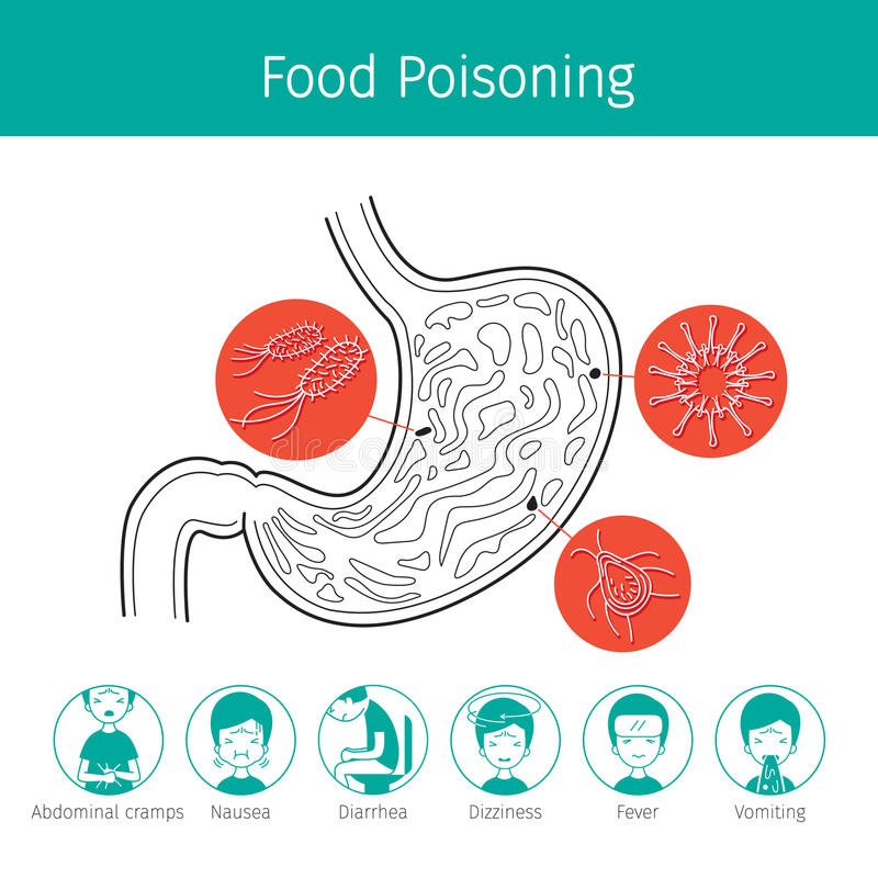Germs In Stomach Cause To Stomachache And Food Poisoning Stock