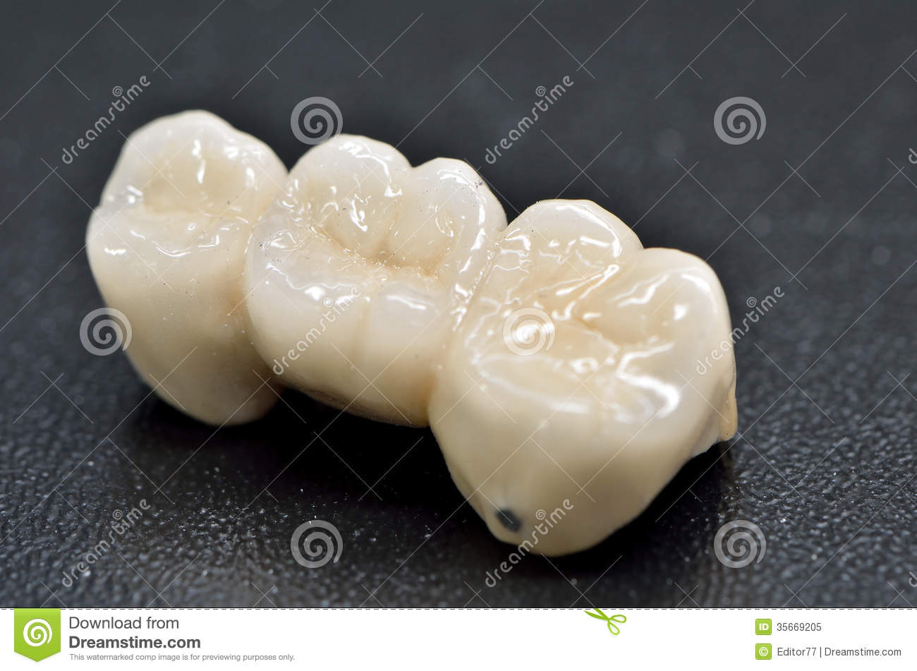Dents En Porcelaine Couronne Dentaire De Porcelaine Image Stock Image Du Blanc