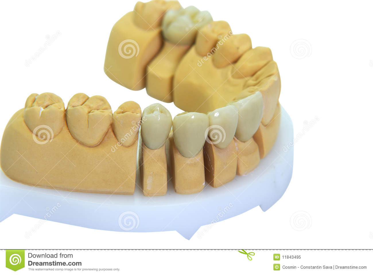Dents En Porcelaine Dentiers Avec Des Dents De Porcelaine Illustration De Vecteur