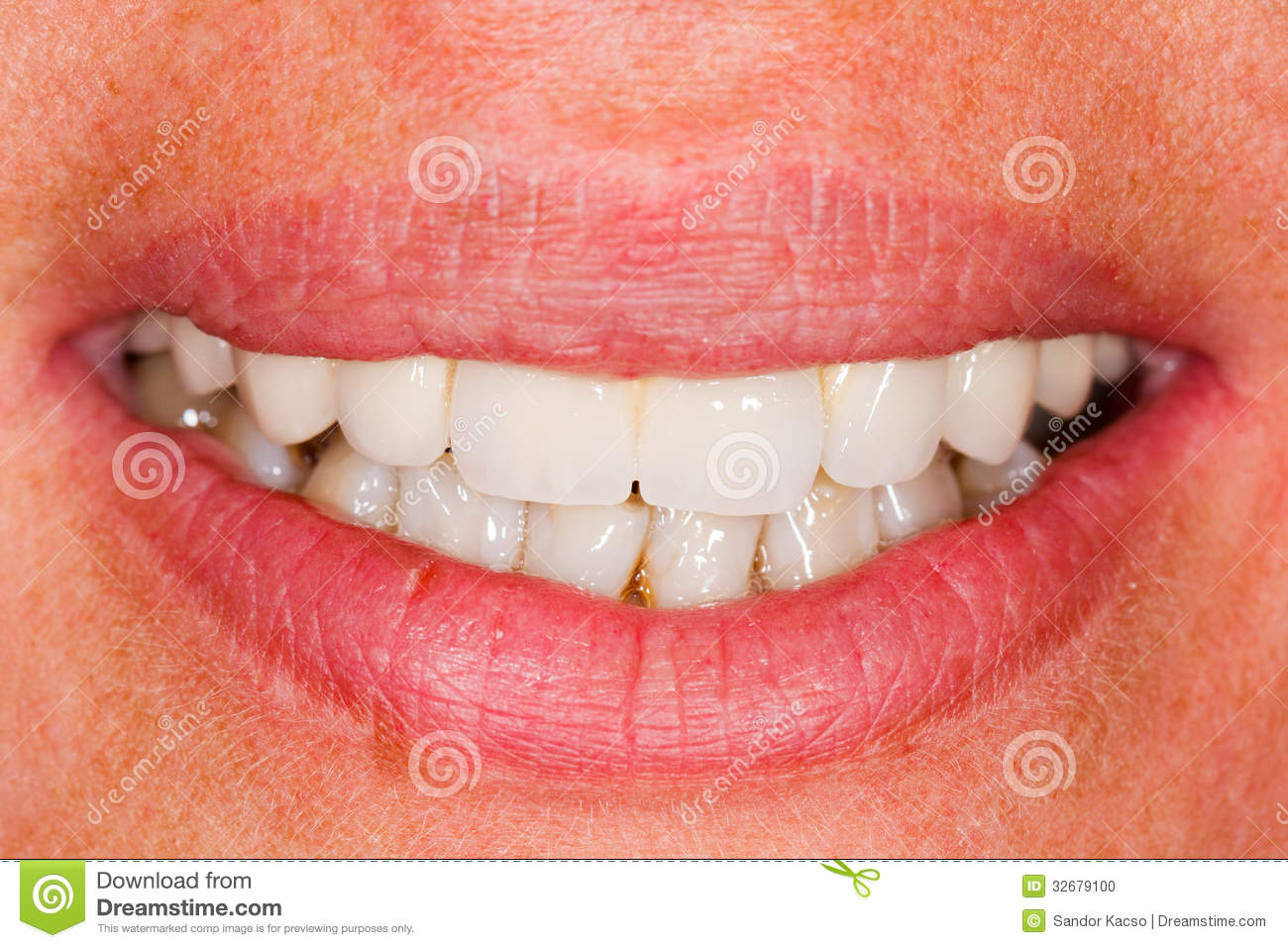 Dents En Porcelaine Dents De Porcelaine Dans La Bouche Humaine Photo Stock Image Du