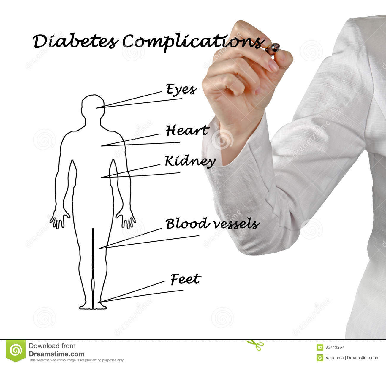 Stock Illustrations Kidneys Diabetes Complications Royalty Free Stock Photography
