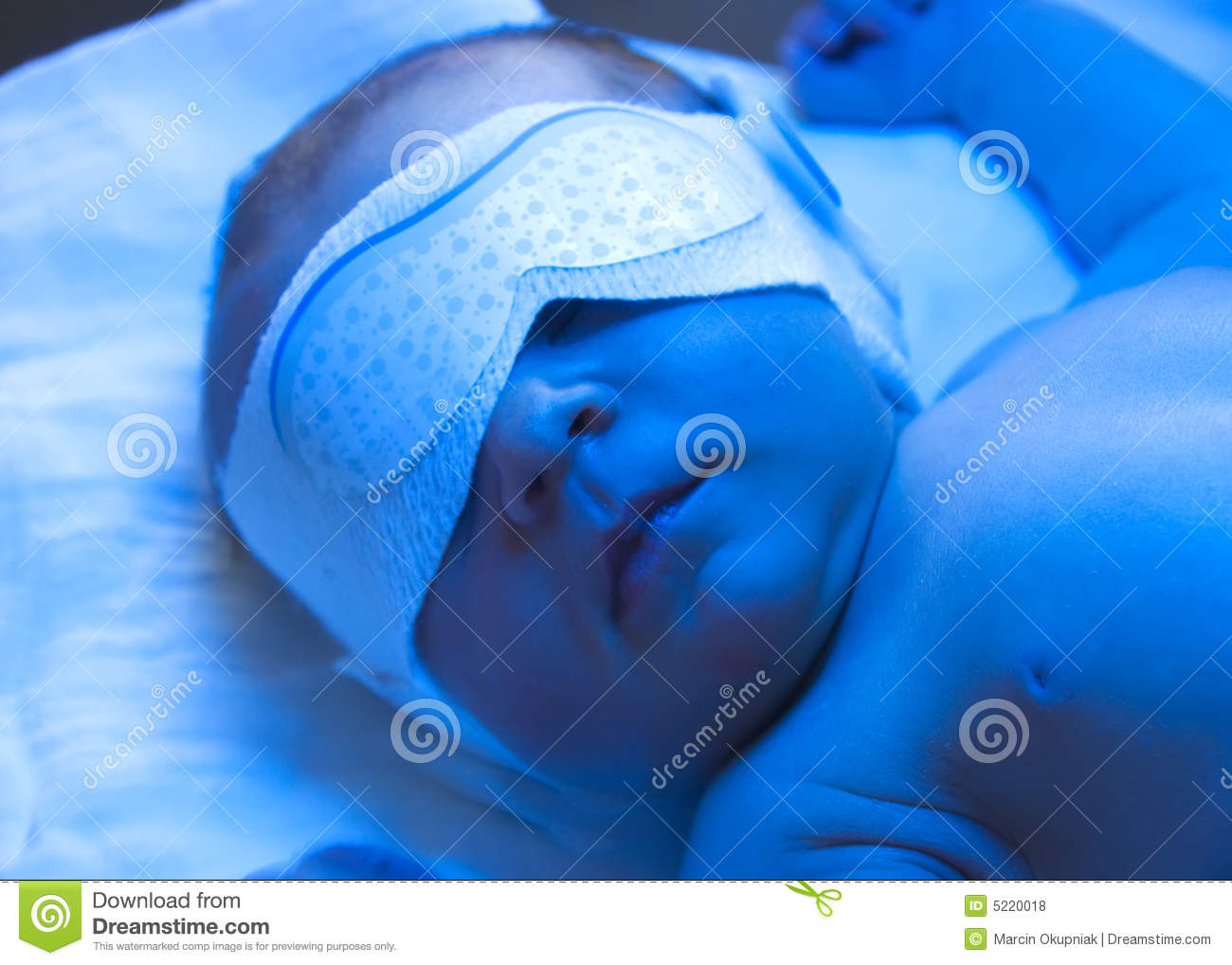 Newborn Babies Jaundice Treatment Newborn Jaundice Treatment Stock Photo Image Of Diaper