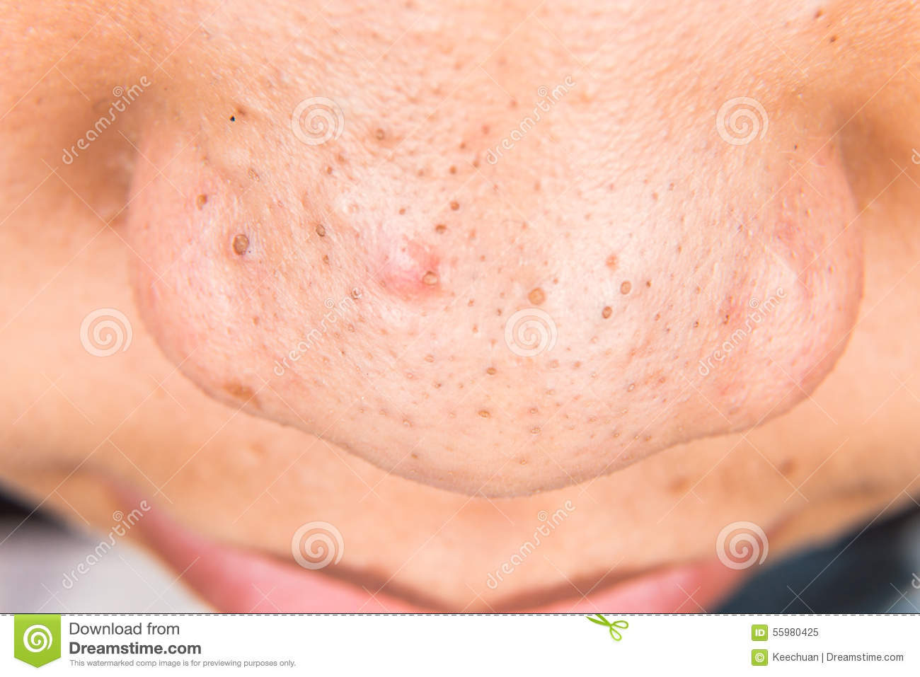 Akne Entfernen Ugly Pimples, Acne, Zit And Blackheads On The Nose Of A