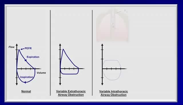 Pulmonary Function Tests (PFT) Lesson 2 - Spirometry GIF Find