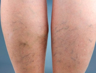 How to treat spider veins at home.
