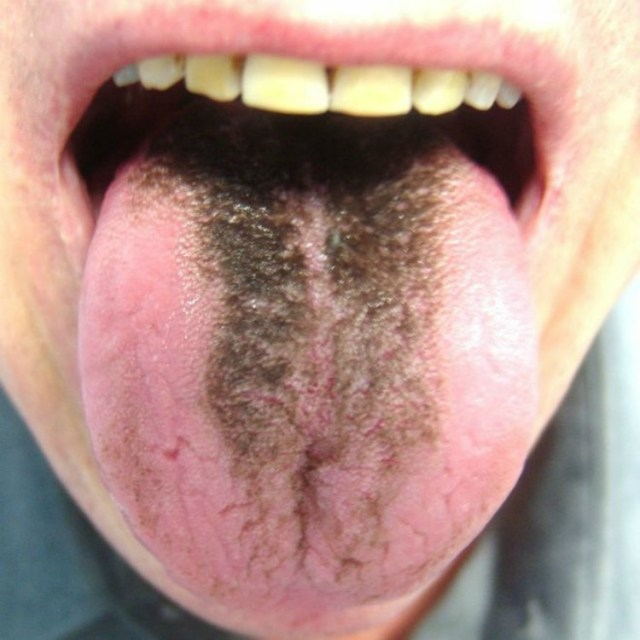 Black coating on tongue.