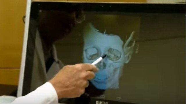 doctor points out bones on face scan